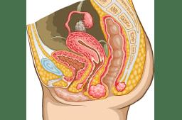 Differentialdiagnose Pathologie der Fortpflanzungsorgane
